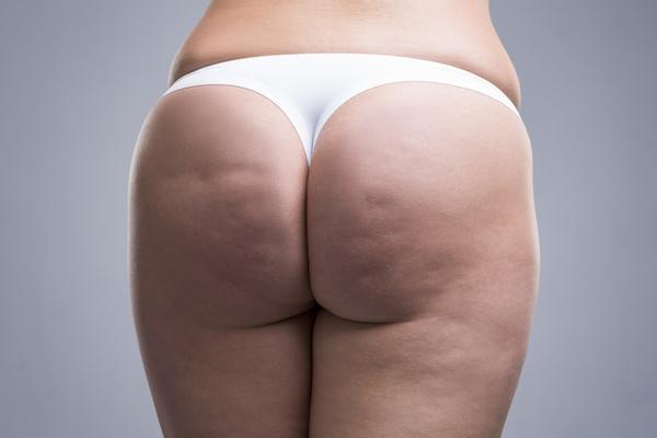 Cellulite Concerns