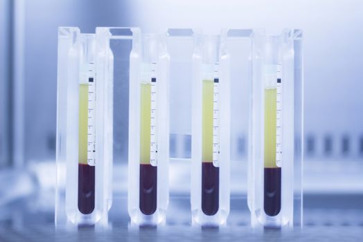 history of Platelet Rich Plasma Treatments